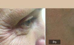 Botox a kyselina