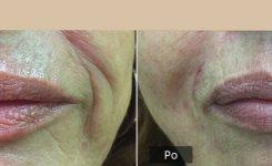 Botox a kyselina 2