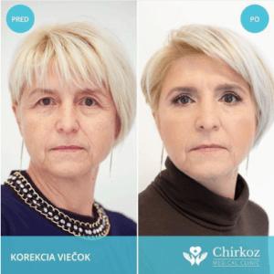 korekcia očných viečok